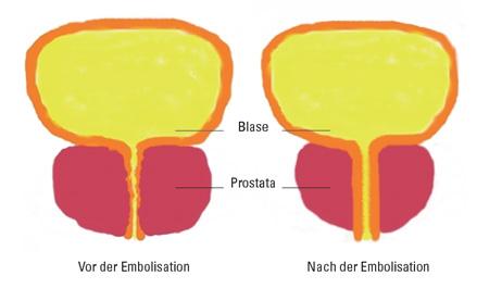 probleme nach prostataoperation