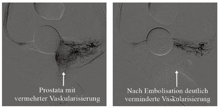Prostata-Embolisation bei benigner Prostatahyperplasie